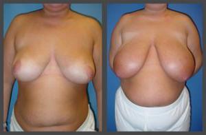 Dr. Tavin乳房缩小术