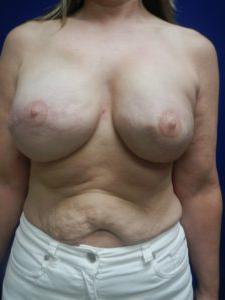 乳房再造前后