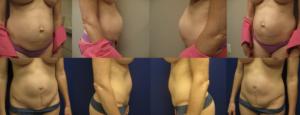 Dr. Leonardi腹壁整形术