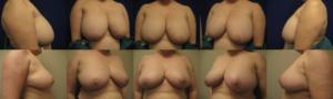 Dr. Leonardi乳房缩小术