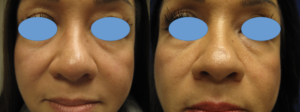 Dr. Leonardi鼻整形术